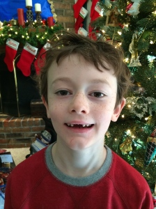 All I want for Christmas is my two front teeth!